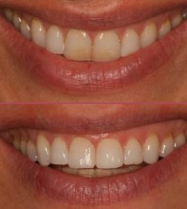 Composite Bonding Cosmetic Dentist IOW