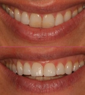 Composite Bonding Cosmetic Dentist IOW