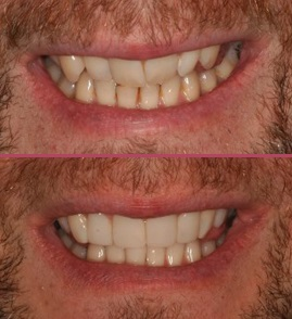 Composite Bonding Freshwater Dentistry