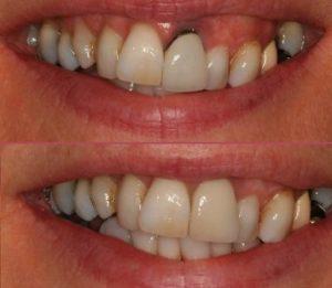 Crowns, Bridges and Veneers Avenue Road Dental Practice