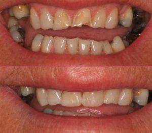 Crowns, Bridges and Veneers Avenue Road Private Dentists