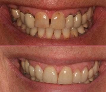 Crowns, Bridges and Veneers IOW Dentists