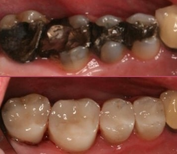Root Fillings General Dentistry IOW