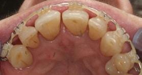 Straight Teeth Fix Island South East IOW Freshwater