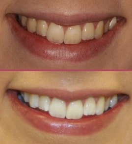 Tooth Whitening Cosmetic Dentistry IOW
