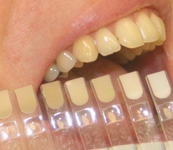 White Fillings IOW Dentists Freshwater